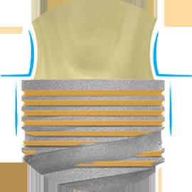Сохранение костной ткани