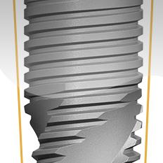 Цилиндроконическая форма и V-образная резьба